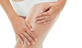 Tips to avoid cellulite