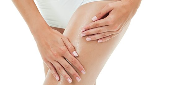 Tips to avoid cellulite